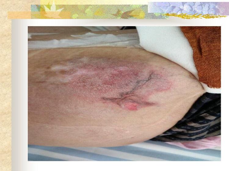 病人皮肤管理PPT