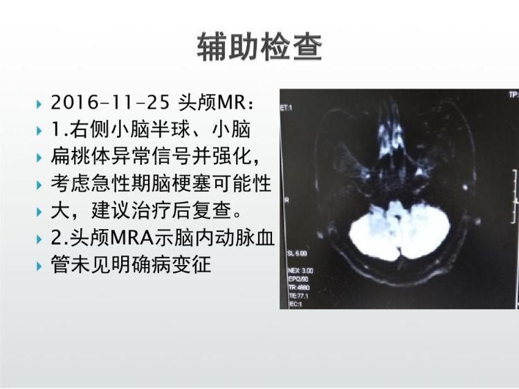 急性小脑梗塞病例汇报PPT